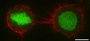 Cell cortex - F-actin distribution in the cell cortex as shown by rhodamine phalloidin staining of HeLa cells that constitutively express Histone H2B-GFP to mark chromosomes. F-actin is thus red, while Histone H2B is displayed in green. The left hand cell is in mitosis, as demonstrated by chromosome condensation, while the right hand cell is in interphase(as determined by intact cell nucleus) in a suspended state. In both cases F-actin is enriched around the cell periphery. Scale bar: 10 micrometers.