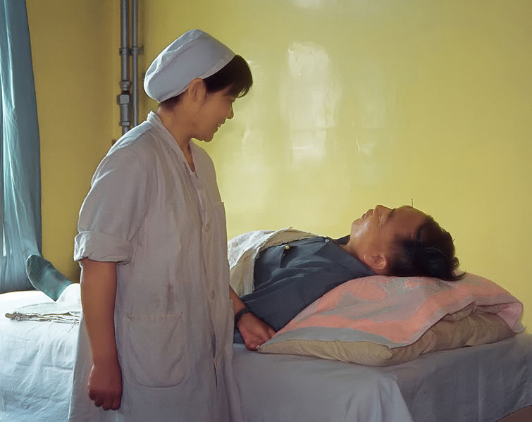 File:Acupuncture in the hospital room in Qingdao in July 1983.jpg