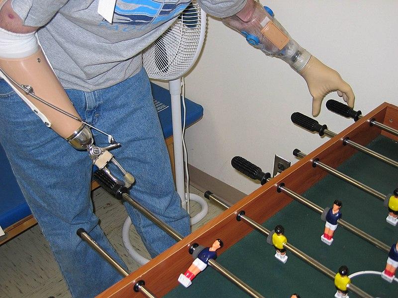 Armprothesen (c) public domain quelle: Wikipedia
