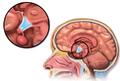 Blausen 0536 HypothalamusLocation.png