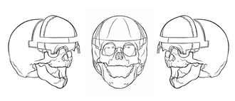 Craniofacial surgery - Fig. 4 Bone segments that are removed in fronto-supraorbital advancement
