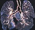 Coal workers pneumoconiosis - Anthracosilicosis (5187845054).jpg