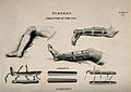 Diagrams illustrating; bandaged legs in splints Wellcome V0016827.jpg