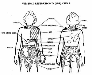 Common Referred Pain Patterns – Low Back