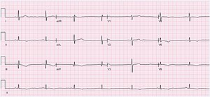 An ECG showing sinus bradycardia at 43 bpm. The image is made up of a red grid on a white background. A black line traces the patients heart beat.