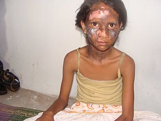 Child abuse - A girl who was burned during religious violence in Orissa, India.