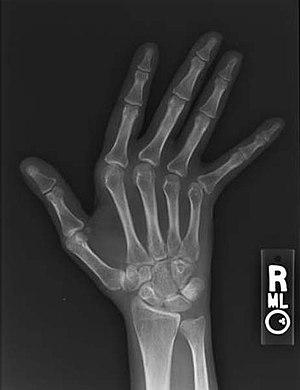 Jaccoud arthropathy hand x-ray front.jpg