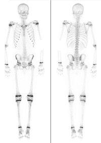 Knochen15Jahre.jpg