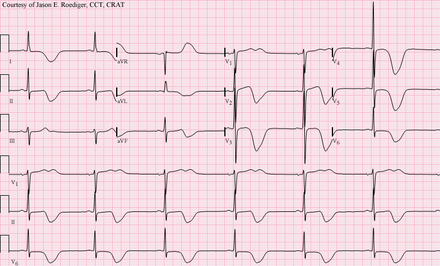 12-lead ECG of a patient with a stroke, showing large deeply inverted T-waves. Various ECG changes may occur in people with strokes and other brain disorders. Left MCA Stroke.png