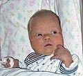 Nyfødt med down syndrom.jpg