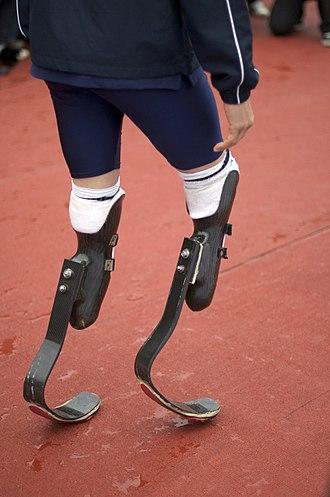 Mechanics of Oscar Pistorius' running blades - Pistorius wearing Flex-Foot Cheetah blades