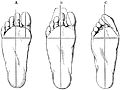 PSM V17 D758 Normal and boot deformed feet.jpg