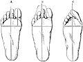 PSM V17 D758 Normal and boot deformed feet.jpg