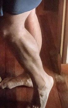 Dolor muscular muslo y pantorrilla
