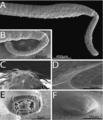 Parasite170054-fig2 Rhadinorhynchus oligospinosus (Acanthocephala).png