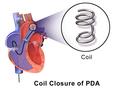 Patent Ductus Arteriosus (Coil Closure).png