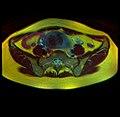 Pelvic MRI 05 20.jpg