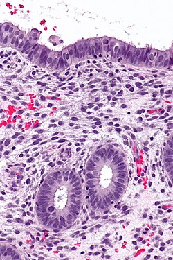 Proliferative phase endometrium -- high mag.jpg