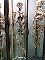 Rillieux-la-Pape - Musée Testut-Latarjet, squelette d'un homme de 53 ans atteint de rachitisme tardif.jpg