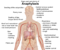 Signs and symptoms of anaphylaxis.png