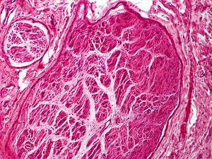 Skin Tumors-PA291026.jpg
