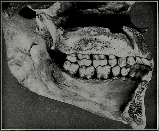 The Dental cosmos (1914) (14581513959)