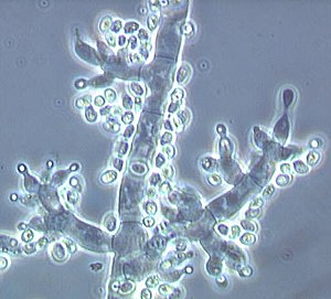 Conidiophores of Trichoderma fertile with vase-shaped phialides and newly formed conidia on their ends (bright points) Trichoderma fertile.jpg