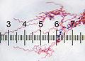 20100905 211652 SpirochetesZoom.jpg