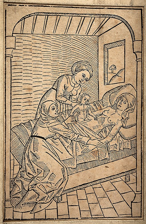 A baby being removed from its dying mother's womb via Caesar Wellcome V0014915