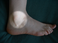 Ankle highlighted.png
