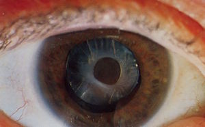 Anterior capsular opacification around Intraoc...