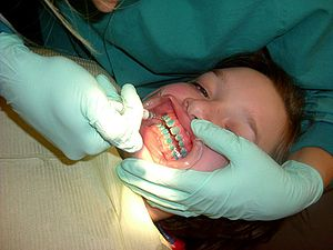 Dental braces - A patient's teeth are prepared for application of braces.