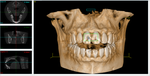 CBCT image 02.png