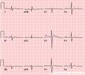 De-LHA (CardioNetworks ECGpedia).png