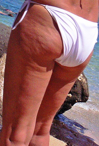 Dimpled appearance of cellulite.jpg