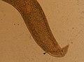 Enterobius vermicularis (YPM IZ 095260).jpeg