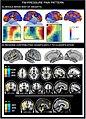 FM-Pressure Pain Pattern.jpg