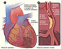 Heart attack sp.jpg