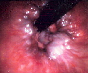 Endoscopic image of hemorrhoids seen on retrof...