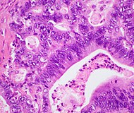 Histopathology of pancreatic ductal adenocarcinoma.jpg
