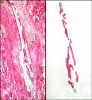 Laser capture microdissection - Laser capture micro-dissection transfer of pure breast duct epithelial cells. Left panel shows tissue section with selected cells removed. Right panel shows isolated epithelial cells on transfer film.