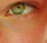 Cuando el pigmento es escaso, los ojos son de color azulado; si hay mayor cantidad se aprecian matices verdosos o castaños.