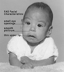 Image of Fetal Alcohol Syndrome