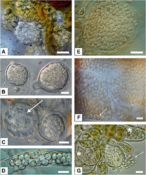 Phytomyxea - Resting spores of different species
