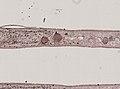 Pleioplana atomata (YPM IZ 073713) 17.jpeg