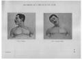 Richer - Anatomie artistique, 2 p. 106.png