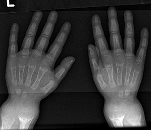 Wrist X ray Showing Changes in Rickets, mainly...