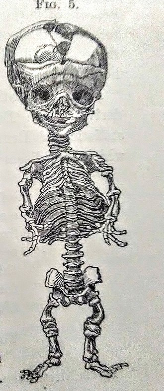 Skull bossing - Infant Skeleton with Frontal Bossing, A Treatise of the Diseases of Infancy and Childhood by Dr. Job Lewis Smith, 1881