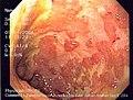 Ulcerative colitis.jpg