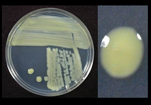 Xanthomonas - Xanthomonas translucens growing on sucrose peptone agar showing yellow pigment